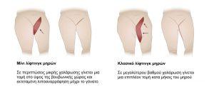 ανόρθωση μηρών