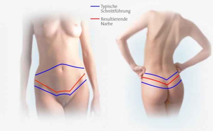 Χειρουργικές λύσεις της παχυσαρκίας