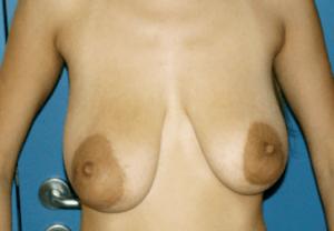 ανόρθωση ή αυξητική στήθους