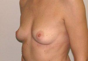 Διαφορές Ανόρθωσης & Αύξησης Στήθους