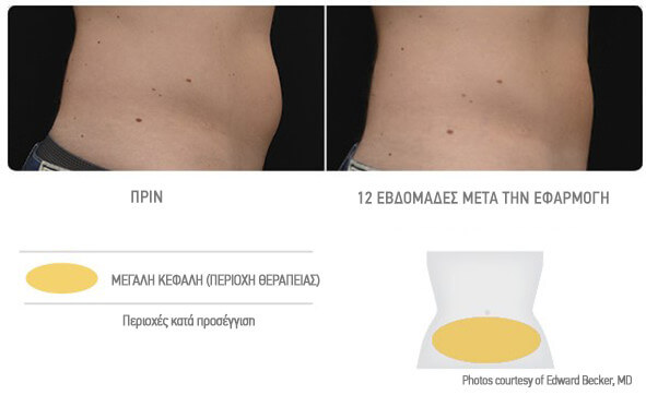 coolsculpting-adynatisma