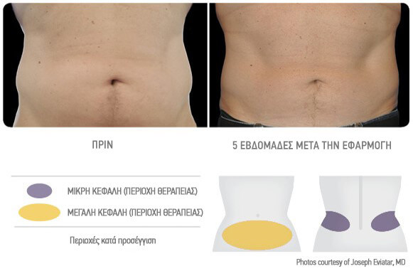 coolsculpting-antras-therapeia