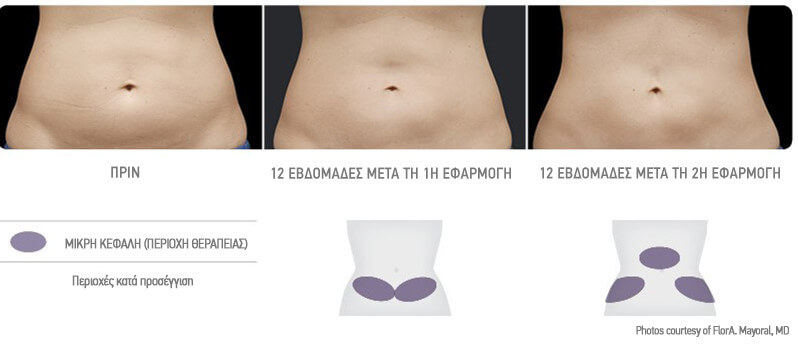 coolsculpting-apotelesmata