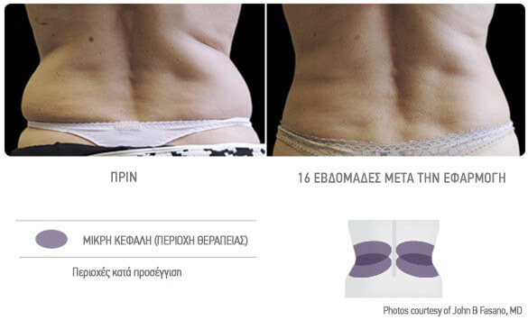 coolsculpting-gynaika