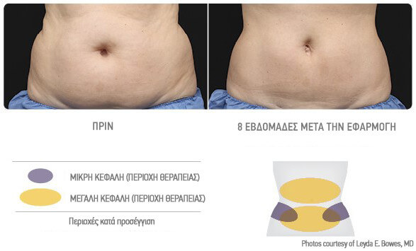coolsculpting-koilia