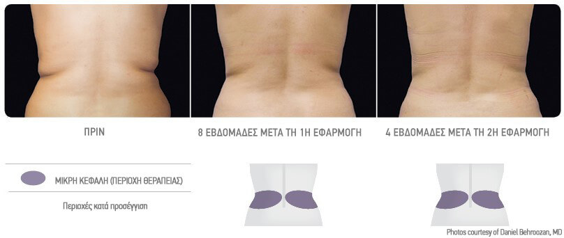 coolsculpting-kriolipolisi