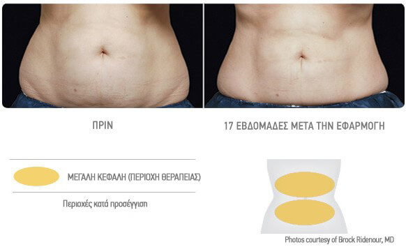 coolsculpting-therapeia